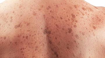 No hay cifras concretas sobre casos de cáncer de piel: AC